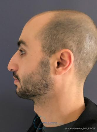 Rhinoplasty: Patient 91 - Before and After Image 6