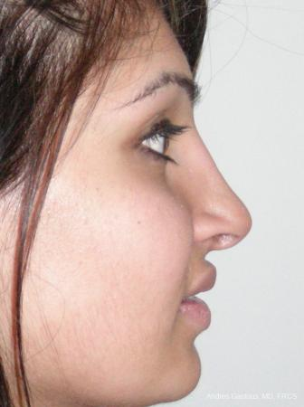 Rhinoplasty: Patient 29 - After Image 5