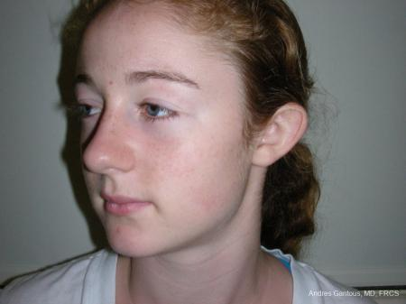 Otoplasty And Earlobe Repair: Patient 28 - Before Image 4