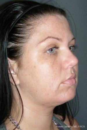Facelift & Neck Lift: Patient 11 - After Image 2