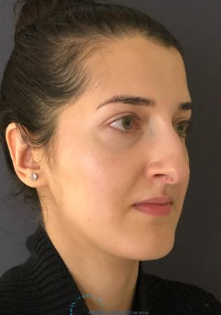 Rhinoplasty: Patient 10 - Before Image 4