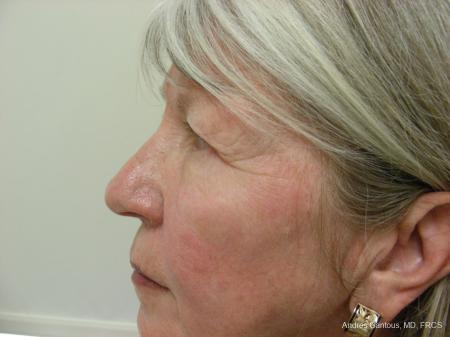 Eyelid Lift: Patient 9 - Before and After Image 5