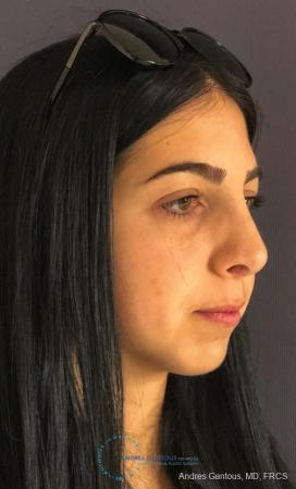 Rhinoplasty: Patient 87 - After Image 3