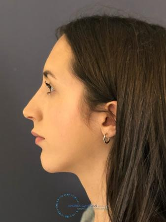Rhinoplasty: Patient 8 - After Image 5