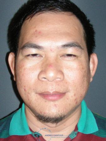 Rhinoplasty: Patient 65 - Before Image 1