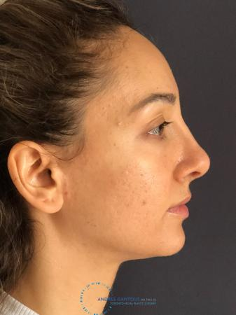 Rhinoplasty: Patient 62 - After Image 5