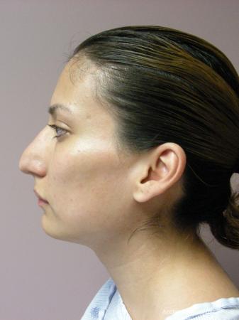 Rhinoplasty: Patient 58 - Before Image 5