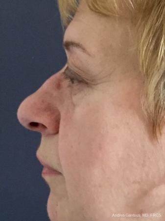 Rhinoplasty: Patient 22 - Before Image 5