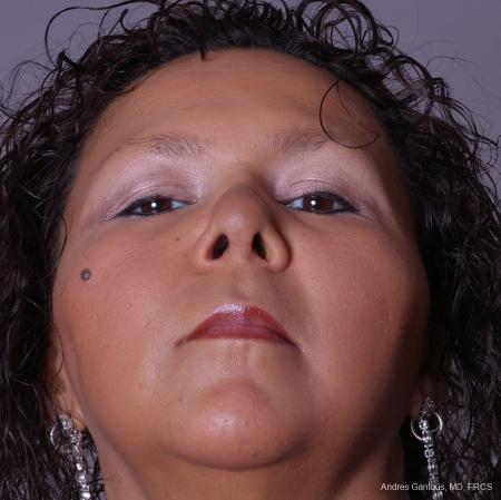 Reconstructive Rhinoplasty: Patient 1 - After Image 4