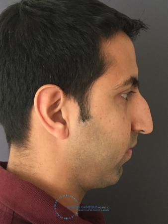 Rhinoplasty: Patient 78 - Before Image 5