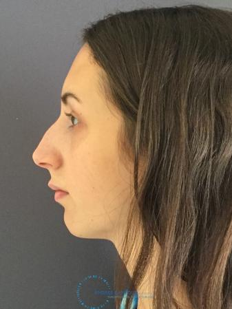 Rhinoplasty: Patient 8 - Before Image 5