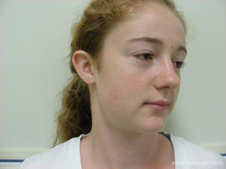 Otoplasty And Earlobe Repair: Patient 28 - Before Image 2