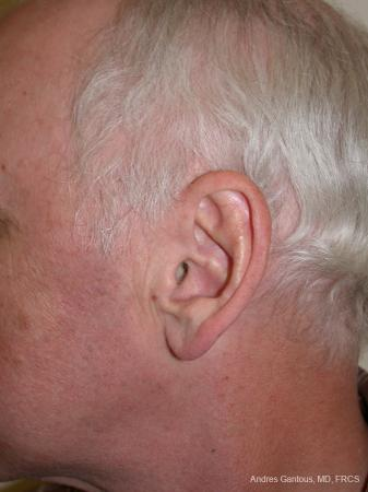 Otoplasty And Earlobe Repair: Patient 24 - Before and After Image 5