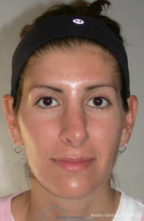 Revision Rhinoplasty: Patient 1 - Before Image 1