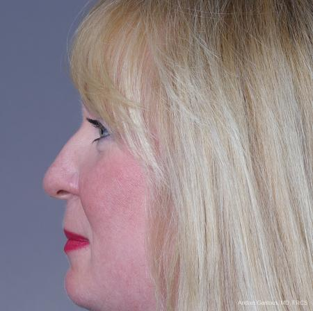 Rhinoplasty: Patient 38 - Before and After Image 5
