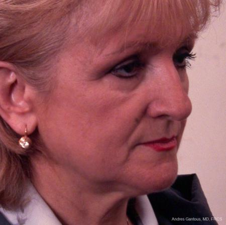 Facelift & Neck Lift: Patient 6 - Before and After Image 2