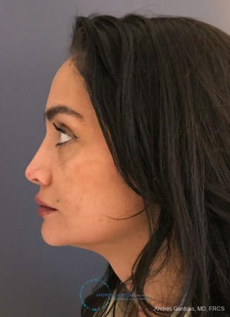 Revision Rhinoplasty: Patient 13 - Before and After Image 6