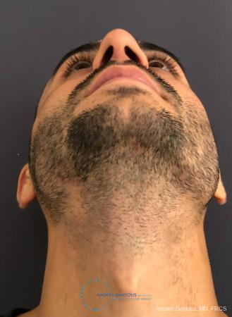 Rhinoplasty: Patient 91 - After Image 2