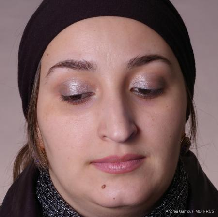 Rhinoplasty: Patient 54 - Before Image 1