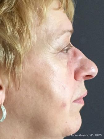 Rhinoplasty: Patient 21 - Before and After Image 6
