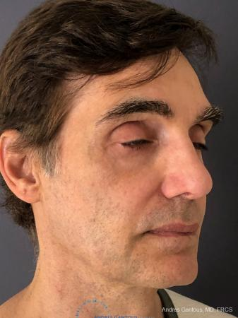 Rhinoplasty: Patient 81 - After Image 3