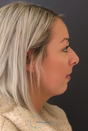 Rhinoplasty: Patient 73 - Before and After Image 6