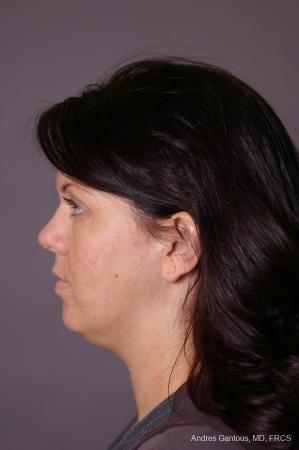 Facelift & Neck Lift: Patient 11 - Before and After Image 5