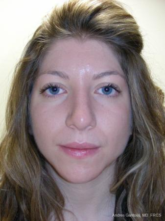 Rhinoplasty: Patient 52 - After Image 1