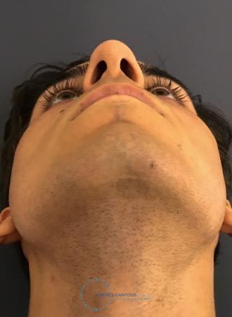 Rhinoplasty: Patient 67 - Before Image 2