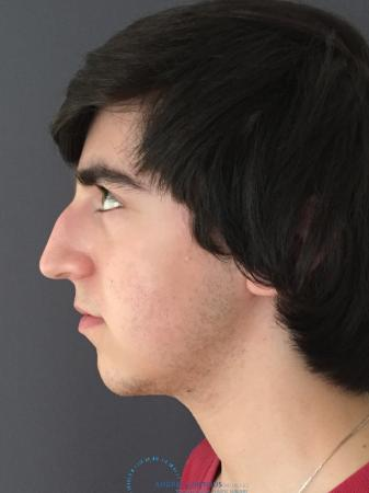 Rhinoplasty: Patient 69 - Before and After Image 6