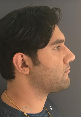 Rhinoplasty: Patient 64 - After Image 5