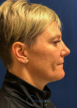 Rhinoplasty: Patient 71 - After Image 5
