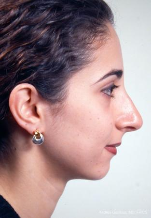 Rhinoplasty: Patient 14 - Before and After Image 5