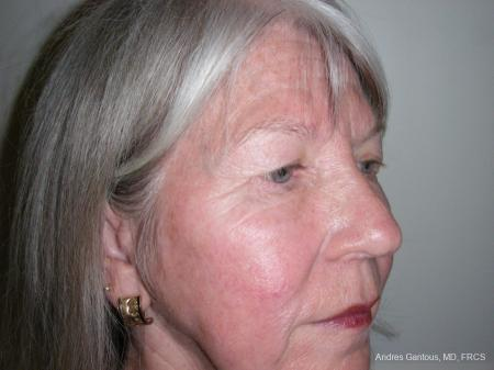 Eyelid Lift: Patient 9 - Before Image 2