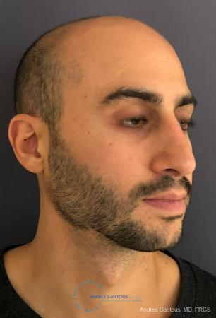 Rhinoplasty: Patient 91 - After Image 3