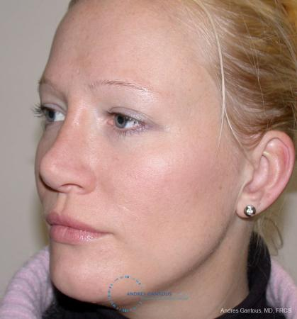 Rhinoplasty: Patient 97 - After Image 2
