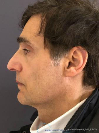 Rhinoplasty: Patient 81 - Before and After Image 6