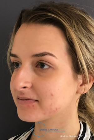 Rhinoplasty: Patient 91 - Before Image 4