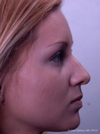 Rhinoplasty: Patient 23 - Before Image 3