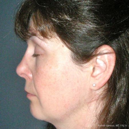 Reconstructive Rhinoplasty: Patient 5 - After Image 5