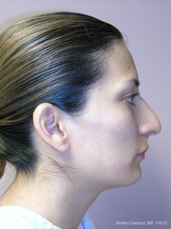 Rhinoplasty: Patient 59 - Before Image 3