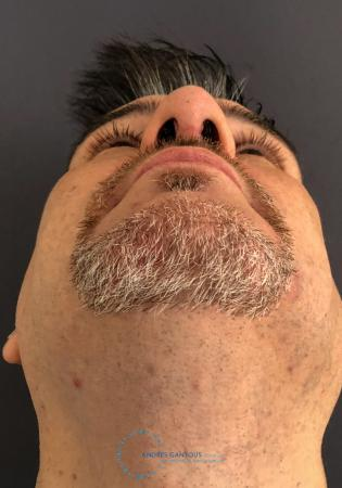 Revision Rhinoplasty: Patient 24 - After Image 2