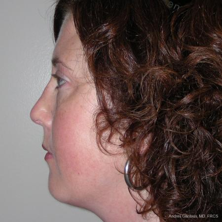 Reconstructive Rhinoplasty: Patient 2 - After Image 3