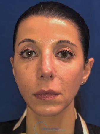 Rhinoplasty: Patient 64 - After Image 1