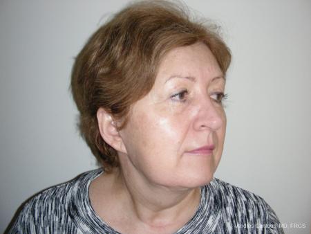 Facelift & Neck Lift: Patient 9 - Before Image 2