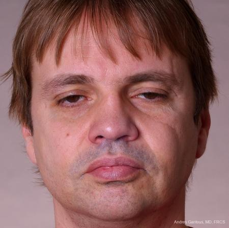 Rhinoplasty: Patient 39 - After Image 1