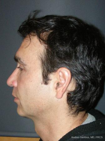 Rhinoplasty: Patient 45 - After Image 5