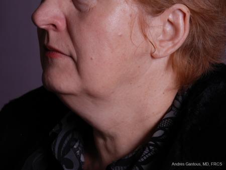 Facelift & Neck Lift: Patient 9 - After Image 4