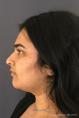Rhinoplasty: Patient 89 - Before and After Image 6
