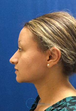 Rhinoplasty: Patient 97 - Before and After Image 6